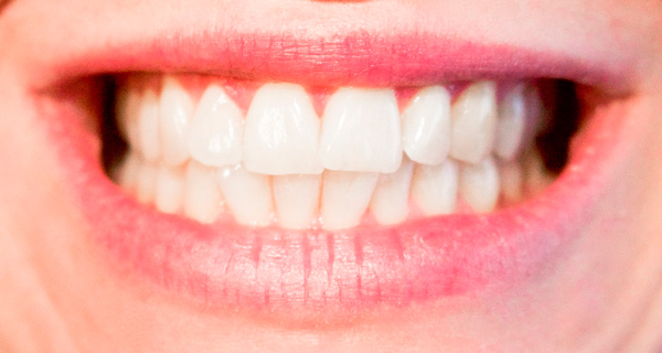 teeth-1652976_1920_web